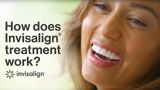 How does Invisalign work? Learn about Invisalign
