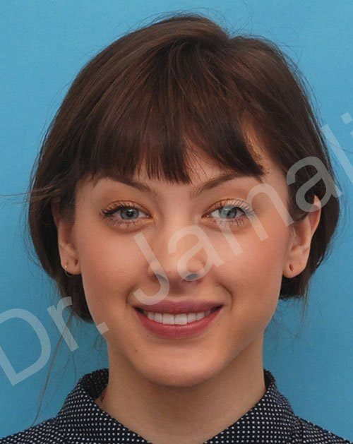 chin augmentation - patient 7 - after 1