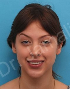 Chin Augmentation Photo - Patient 7 - Before 1