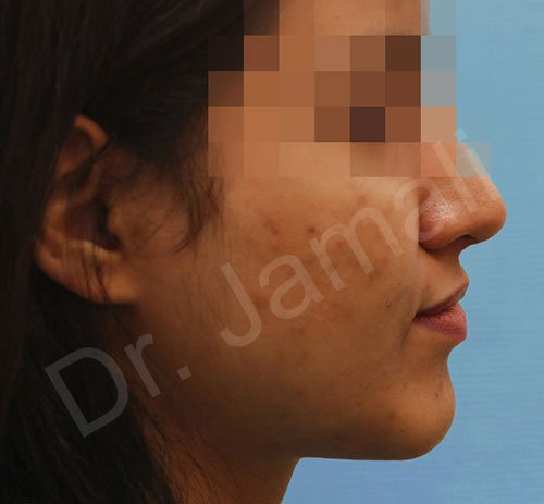 chin augmentation - patient 4 - after 1