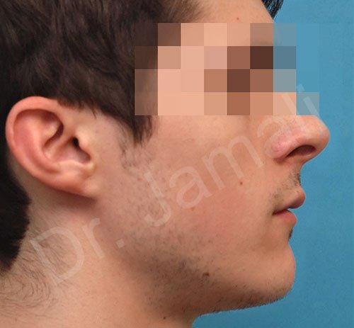 chin augmentation - patient 5 - after 1
