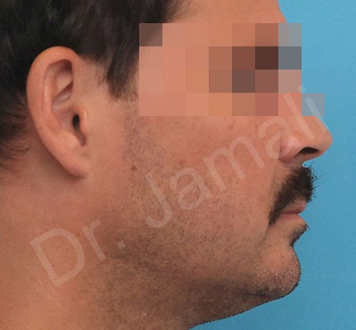 chin augmentation - patient 6 - after 1