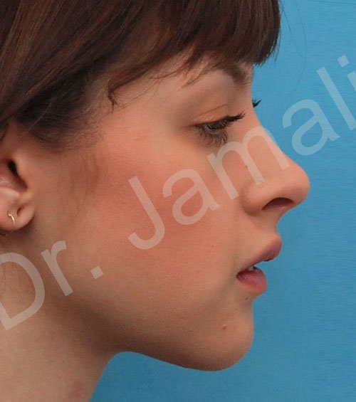 chin augmentation - patient 7 - after 2