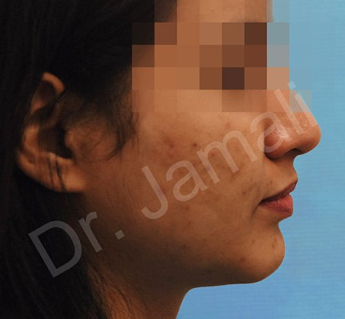 chin augmentation - patient 4 - before 1