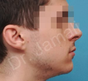 Chin Augmentation Photo - Patient 5 - Before 1