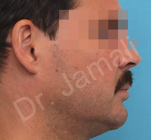 chin augmentation - patient 6 - before 1