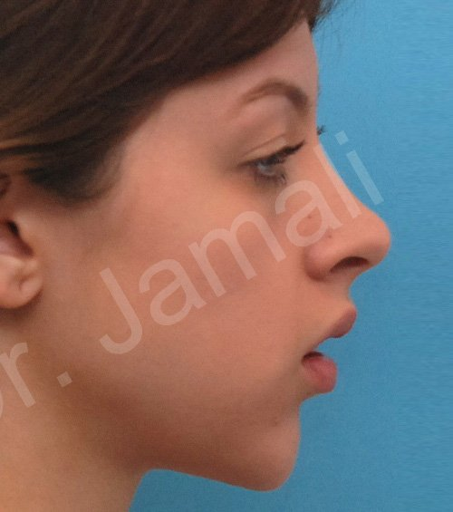 chin augmentation - patient 7 - before 2