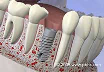 dental implants surgery nyc
