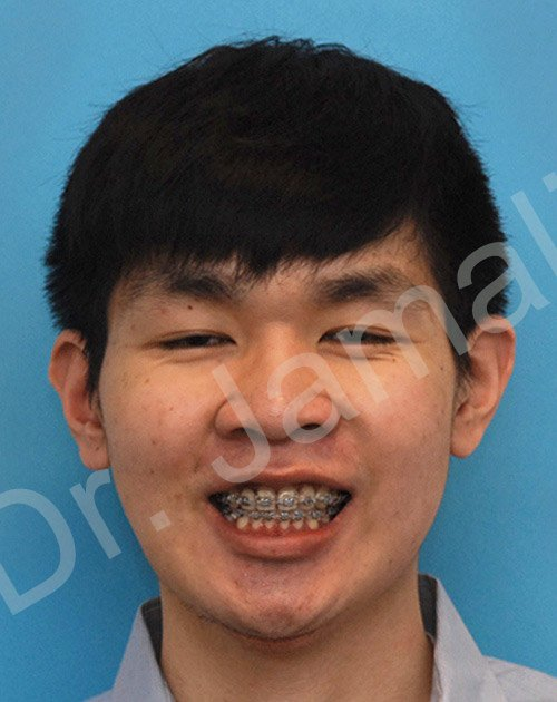 orthognathic surgery - patient 4 - after 2