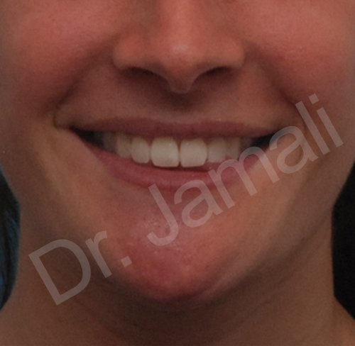 orthognathic surgery - patient 1 - after 1
