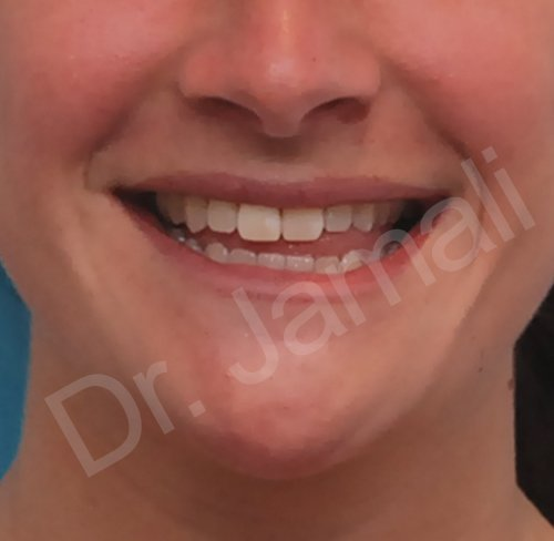 orthognathic surgery - patient 1 - before 1