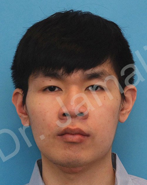 orthognathic surgery - patient 4 - after 1