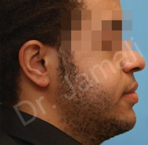Orthognathic Surgery Photo - Patient 3 - After 1