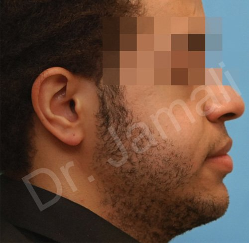 orthognathic surgery - patient 3 - after 1