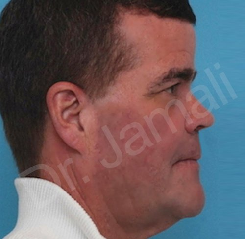 orthognathic surgery - patient 2 - after 1