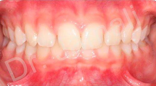 orthodontics treatments - patient 1 - before 7