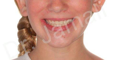 orthodontics treatments - patient 1 - after 3