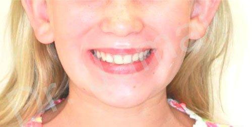 orthodontics treatments - patient 1 - before 3