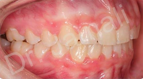 orthodontics treatments - patient 1 - after 8