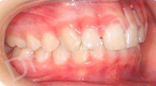 orthodontics treatments - patient 1 - before 8
