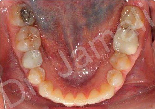 orthodontics treatments - patient 2 - after 5