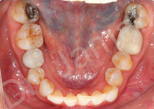 orthodontics treatments - patient 2 - before 5