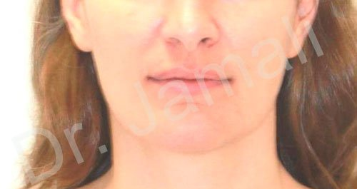 orthodontics treatments - patient 2 - before 2