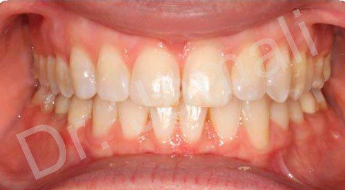 orthodontics treatments - patient 2 - after 7