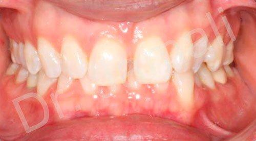 orthodontics treatments - patient 2 - before 7