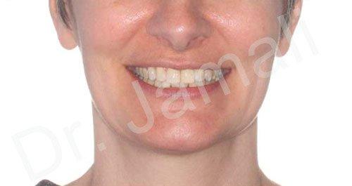 orthodontics treatments - patient 2 - after 3