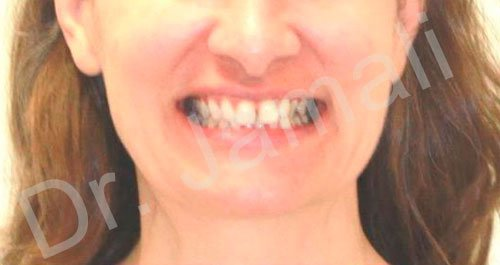 orthodontics treatments - patient 2 - before 3