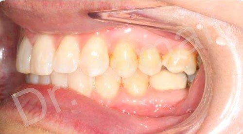 orthodontics treatments - patient 2 - after 6