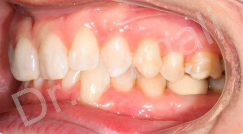 orthodontics treatments - patient 2 - before 6