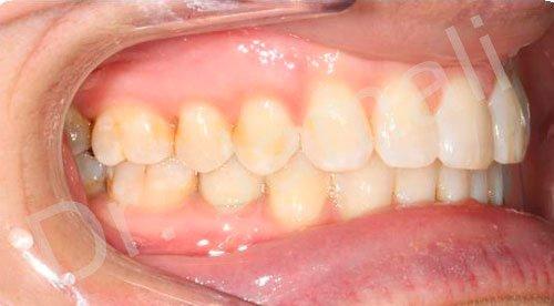 orthodontics treatments - patient 2 - after 8