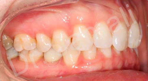 orthodontics treatments - patient 2 - before 8