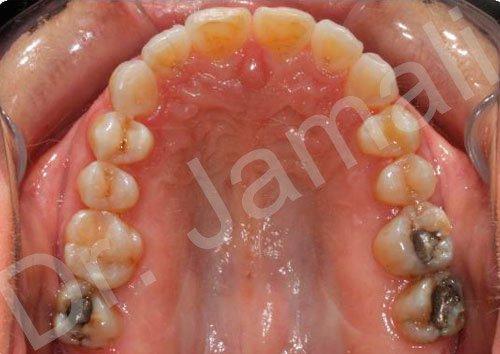 orthodontics treatments - patient 2 - after 4
