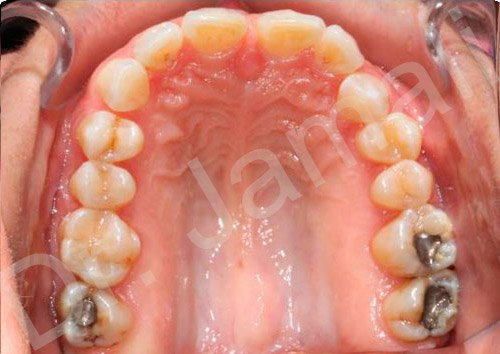 orthodontics treatments - patient 2 - before 4