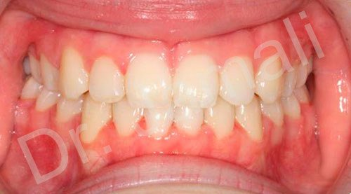 orthodontics treatments - patient 3 - after 7