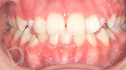 orthodontics treatments - patient 3 - before 7