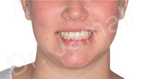 orthodontics treatments - patient 3 - after 3