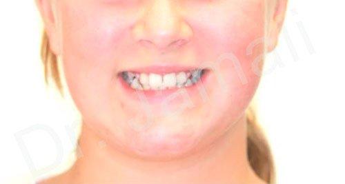 orthodontics treatments - patient 3 - before 3