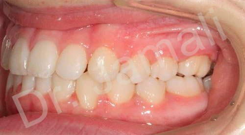 orthodontics treatments - patient 3 - after 6