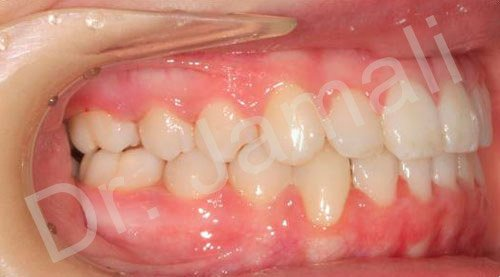orthodontics treatments - patient 3 - after 8