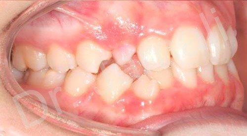 orthodontics treatments - patient 3 - before 8