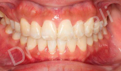 orthodontics treatments - patient 4 - after 7