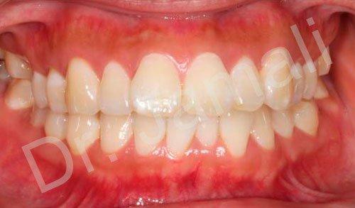 orthodontics treatments - patient 4 - before 7