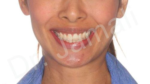 orthodontics treatments - patient 4 - after 3
