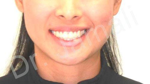 orthodontics treatments - patient 4 - before 3