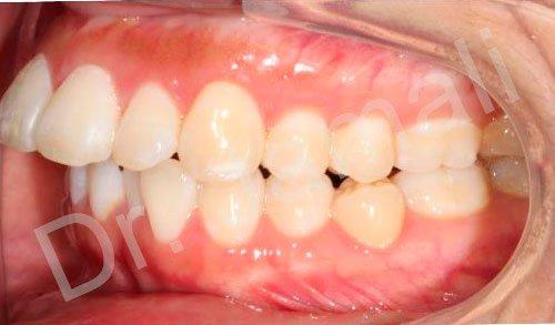 orthodontics treatments - patient 4 - before 8