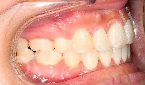 orthodontics treatments - patient 4 - after 6